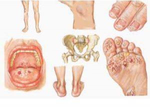 Klamidia adalah penyakit menular seksual